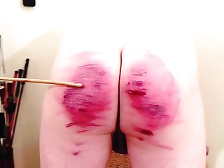 Double caning sm